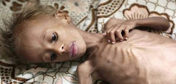 Starving child in Yemen
